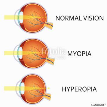 Myopia: Short Sightedness