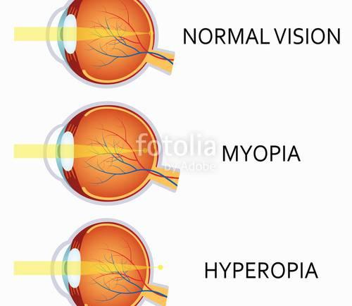 Myopia: Short Sightedness