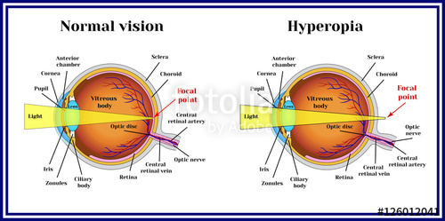 Hyperopia – Long sightedness